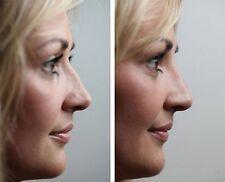 NEW Nose Nasal Bone Shaper bridge bump hump Straighten Align symmetrical Clip