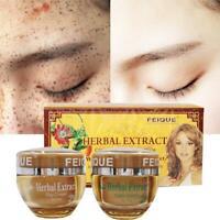 Remove Freckle Speckle Peels Dark Face Spot Remover Skin Care Whitening nEWS UK