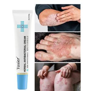 Chinese Herbal Antibacterial Cream Itchy Skin Rash Treatment