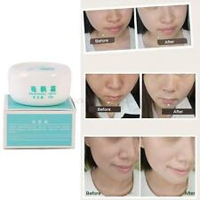 Beauty Face Freckle Dark Spots Removal scar Cream Clean Pigment Whitening Cream