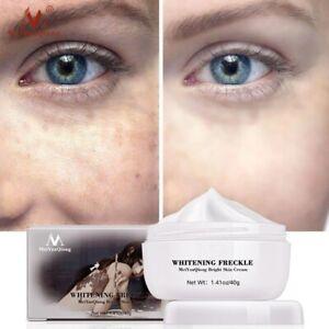 Face Cream Strong Removal Melasma Whitening Freckle Acne Spots Melanin Pigment