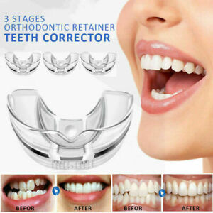 3 Stages Dental Orthodontic Teeth Corrector Braces Tooth Retainer Straighten S50