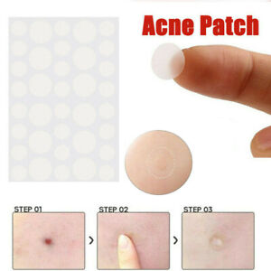 36Pcs/Set Invisible Acne Patches Plasters Pimple Sticker Skin Tags Remover