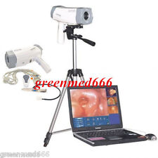 Digital Video Electronic Colposcope +Soft​ware SONY Camera 800,000 pixels CE FDA