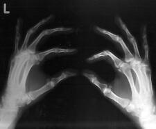 Old Photo. Xray of Hand - Finger Bones - freaky, scary