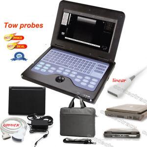 Portable laptop machine Digital Ultrasound scanner,3.5M Convex probe,7.5M linear