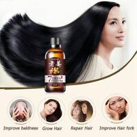 Ginger Essential Oil Anti Hair Loss Treatment Nourish Hair Growth Sessence US