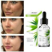 100% Prue Serum Hyaluronsäure Vitamin C Essenz 30ml Bambus Essenz X6U0 Best F0X1