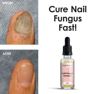 NAIL BRIGHT SERUM – FUNGAL NAIL CURE MAX STRENGTH FAST WORKING STOP FUNGUS