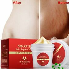 PRO Women Smooth Skin Cream Scar Removal Maternity Skin Repair Body Stretch Mark