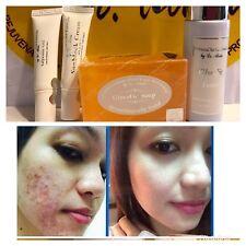 Dr. Alvin PSCF Glycolic Set New Set For Anti-Acne Pimples 100% Authentic
