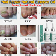 2 bottle Bactericidal Natural Essence Oil Nail Liquid Repair Treatment Nail Toe