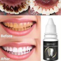 LANBENA 10ml Zahnaufhellung Essence Liquid Mundhygiene Reinigung Serum entfernen