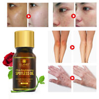 Ultra Brightening Spotless Oil Anti Dark Spots Natural Pure rose Oil Skin Care