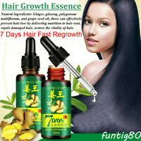 Ginger 7 Days Hair Growth Essential Oil Loss Natural Ginger Regrowth Serum 30ML