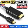 1.8M Thunderbolt Mini DisplayPort DP to HDMI Cable For Macbook Pro Air iMAC 4K
