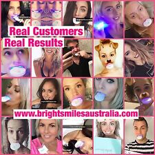 Teeth Whitening Kit Advanced Formula Say Hi To A Pearly White Smile In 7 Days