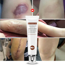 Repair Scar cream Removal Acne Scars gel Stretch Marks Surgical scar Burn Body