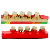 4010# Dental Periodontal Disease Teeth Model Periodontics (PER) Typodont Model