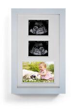 Newborn Baby Pregnancy Ultrasound Scan Triple Photograph Gift Frame