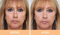 INSTANT Anti- Wrinkle Serum & Puffy eyes NEW FOR DARKER or SENSITIVE Skins!