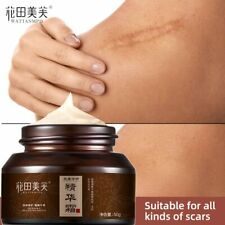 Body Face Acne Scar Removal Cream Reduce Scar Burn Pigmentation Cream Skin Care