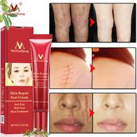 15g Crème anti-cicatrices anti-cicatrices réparation crème anti-vergetures
