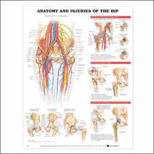 Injuries of the Hip Anatomical Chart/Charts/Model