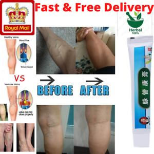 Varicose Veins Miracle Ointment Cream Relief Pain For Vasculitis Phlebitis Gel