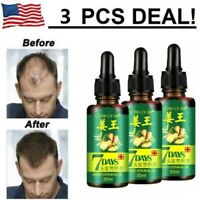3X Hair Regrow 7 Day Ginger Germinal Serum Essence Oil Loss Treatment Growth