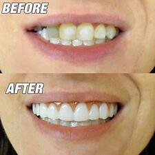 FLEXIBLE ULTRA THIN PERFECT INSTANT SMILE TEETH veneers W 4 EXTRA THERMAL BEADS