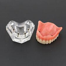 Dental Model Overdenture Superior 4 Implants 6001 01 Clear Teeth Study/Teach