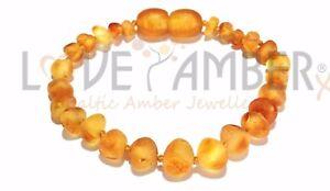 Raw Honey Baltic Amber Childs Anklet Bees Knees Love Amber x UK PREMIUM SELLER