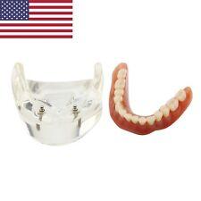 Dental Patient Education Implant Model Overdenture Lower Jaw 2 Implants NISSIN