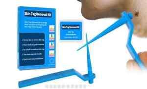 Micro Skin Tag Remover Kit