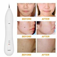 Laser Freckle Removal Machine Skin Mole Dark Spot Face Wart Tag Remover Pen AP