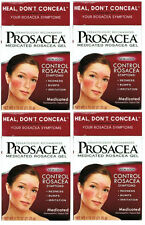 4 PACK Prosacea Medicated Rosacea Topical Gel 0.75oz 072959080211DT