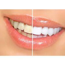 Kit Blanchiment Dentaire Dents Blanche Professionnel Rapide White Light Pro Neuf