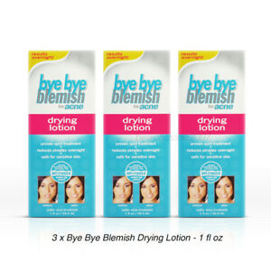 Bye Bye Blemish Drying Lotion for Acne - 1 fl oz / 29.5 mL (Pack of 3)