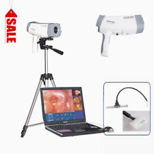 Pro System Video Colposcope Digital SONY Camera High Definition+Software+Tripod
