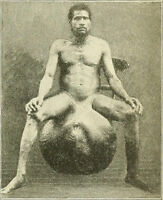 Antique Medical Elephantiasis Scroti Photo 479 Oddleys Strange & Bizarre