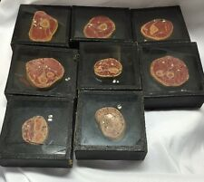 Antique Series of Wax Moulage Cross Sections of Arm Wrist Muscles Bones Model