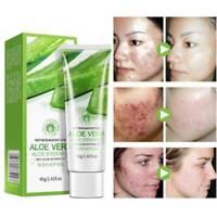 40g Aloe Vera Gel Skin Care Face Cream Anti Winkle Whitening Moisturizing Cream