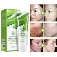 40g Aloe Vera Gel Skin Care Face Cream Anti Winkle Moisturizing Whitening T