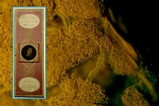 Antique Microscope Slide ~ Human Adipose Tissue ~ Injected Corroded by C Topping