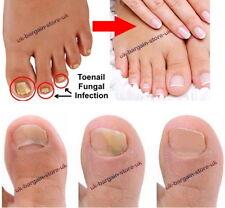 Fungal treatment lotion kills 99.9%skin & nail fungus FOOT UREA