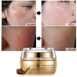 Best Korean Nature Snail Cream Face Skin Care Serum Anti Wrinkles Acne Day Nigh