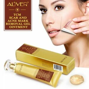 ALIVER SCAR AND ACNE MASK REMOVAL GEL CREAM , for Dry Skin, Fine Lines &