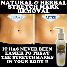 FADE AWAY STRETCH MARK NATURAL LOTION CREAM HIGH STRENGTH REMOVES SCARS