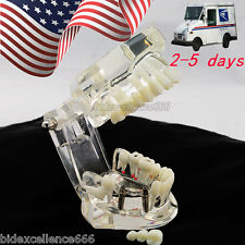 Dental Implant Disease Study Teachin Teeth Model With Restoration & Bridge USA